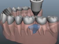 Centre dentaire Lancy - Anesthésie