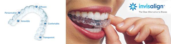 Lancy Dental Centre - Invisalign