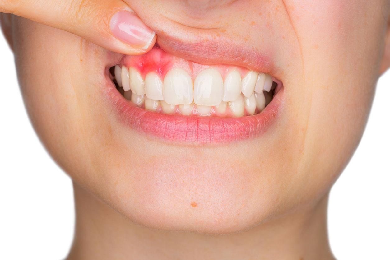 Centre dentaire Lancy - soin des gencives