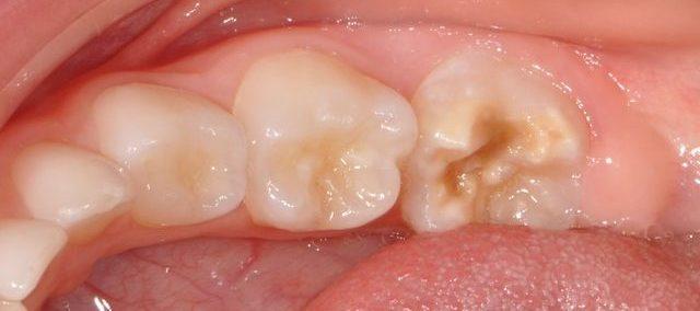 taches dentaires 2-centre dentaire lancy