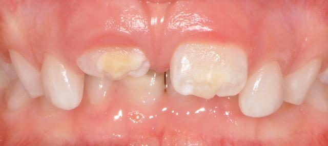 taches dentaires-centre dentaire lancy