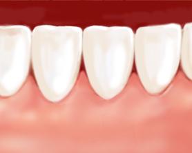 Parodontologie3-Zahnarztzentrum