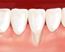 Parodontologie - lancy dental center