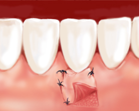 Parodontologie2-Zahnarztzentrum