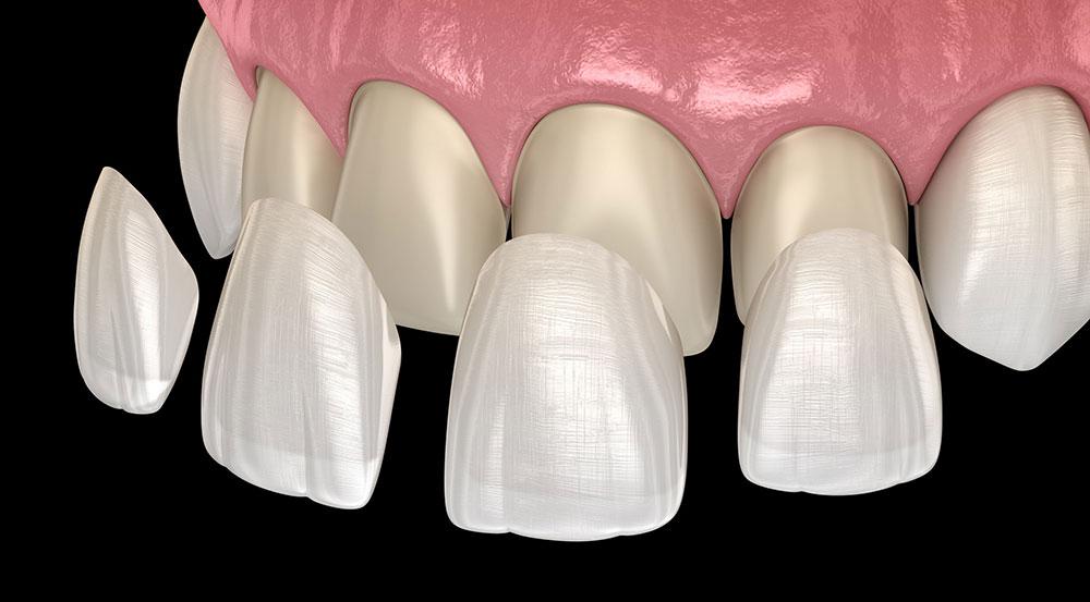 folheados dentários Genebra